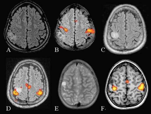 Three patients with intractable seizures due to a mass lesion close to the sensorimotor cortex. Presurgical mapping of the motor cortex was performed using bilateral finger tapping vs rest, in all the three patients. MRI (axial FLAIR) and fMRI (inline BOLD coregistered on FLAIR) images (A, B) of the first patient show that the lesion is posterior to the right postcentral gyrus. Since the lesion was placed well away from the motor cortex it was decided to proceed with surgery. MRI and fMRI in the second patient (C, D) show the mass lesion to be abutting the right hand area. The postsurgical risk of developing limb weakness was explained to the patient. MRI and fMRI images of the third patient (E, F) show that the lesion is placed in the motor cortex lateral to the right hand area. Fortunately the seizures in this patient could be controlled with antiepileptic medication. It was decided to postpone the surgery and keep the patient on regular follow-up