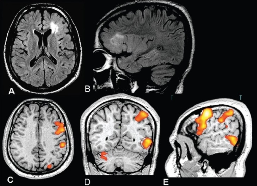 This 22-year-old right-handed male was referred for surgical treatment of medically refractory partial seizures that he had been suffering from the age of 3 years. The video-scalp EEG monitoring confirmed that the origin of the seizures was from the left frontal lobe. Axial (A) and sagittal (B) FLAIR images show a thickened cortex, poor grey-white distinction and underlying white matter hyperintensity in the left frontal area suggestive of focal cortical dysplasia. Inline BOLD fMRI, language area mapping using verb generation task coregistered on axial (C), coronal (D), and sagittal (E) 3D-FLASH images, shows strong left lateralization of language. The lesion is adjacent to the Broca's area. The fMRI helped to define Broca's area, which was preserved during a tailored surgical resection with no postoperative expressive speech deficit. Histopathology confirmed cortical dysplasia