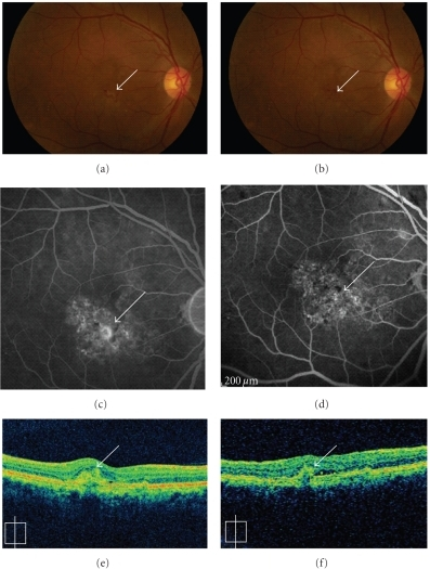 A 61-year-old male showed CNV (arrows) due to AMD (a). Fluorescein angiography (FA) showed predominantly classic CNV (c), and optical coherence tomography (OCT) revealed a subretinal lesion before treatment (e). After the oral administration of alendronate for three months, the CNV regressed remarkably (b) and no leakage was observed using FA (d). A remarkable decrease in the size of the subretinal lesion was observed using OCT (f).