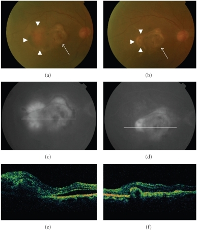 A 79-year-old male who received PDT for 27 months ago showed a recurrence of CNV (arrowheads), mainly at the temporal edge of the old scar (arrows) (a). Fluorescein angiography (FA) showed predominantly classic CNV (c), and optical coherence tomography (OCT) revealed a subretinal lesion before treatment (e). After the oral administration of alendronate for three months, the CNV became subretinal fibrosis (b) and no leakage was observed using FA (d). A remarkable decrease in the size of the subretinal lesion was observed using OCT (f).