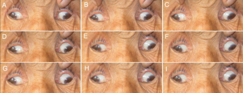 Photographs of individual II:4 in pedigree XT. Photos are taken in primary gaze (E) and in the 8 cardinal gaze positions (A, B, C, D, F, G, H, and I). This subject demonstrates marked ophthalmoparesis, infraducted eyes in primary position, exotropia, and an inability to raise the eyes above midline. This patient also has bilateral ptosis (not shown).