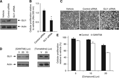 Reducing GLI1 expression in SUM149 cells by either siRNA knockdown or small molecule treatment results in decreased proliferation. SUM149 cells (7 × 104 cells per well in six-well plates) were transfected with 100 n of GLI1 siRNA or control siRNA for 72 h. Vehicle is lipofectamine alone. (A) Immunoblot analysis of GLI1 protein expression. The blot was stripped and reprobed for β-actin as an internal control for equal loading. (B) Cell proliferation was measured after 72 h by MTT assay. Experiments were performed in triplicate, P-value <0.05. (C) SUM149 cells were examined for morphology under phase light microscopy using an Olympus IX51 inverted microscope at a × 100 magnification. Bar=100 μm. (D) Immunoblot for GLI1 protein expression in SUM149 cells treated for 72 h with indicated concentrations of GANT58 (left panel) or tomatidine (right panel). β-Actin was used as an internal control for equal loading. (E) Cell proliferation was measured by MTT for SUM149 cells following treatment for 72 h with indicated concentrations of GANT58 or tomatidine as a control. Data are shown as relative to control (%).