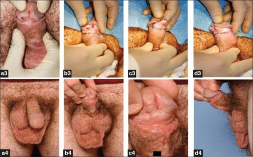 BXO involving glans and corona (a3-d3) excised and resurfaced with split skin graft (a4-d4)