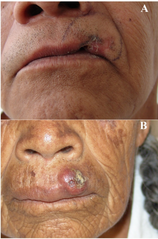 A. Advanced BCC of the upper lip in a 55 year-old male patient in which the site of origin cannot be determined. B. Primary cutaneous BCC with early invasion to the vermilion border in a 66 year-old female patient.