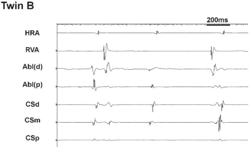 Intracardiac recordings during mapping at the slow pathway region in twin B. Junctional tachycardia with dissociated atrial and ventricular activity was observed on touch alone.