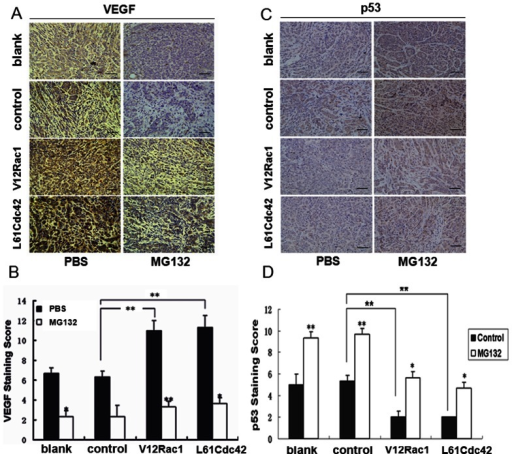 Effect of intratumoral injections of MG132 on vascularization induced by active Rac1/Cdc42 in MCF-7 cell xenografts.These experiments were described in the Materials and Methods section. Stably transfected cells (MCF-7, GST–MCF-7, V12Rac1–MCF-7, L61Cdc42–MCF-7) were used for xenografts in nude mice. When the tumors reached a volume of 200 mm3, the mice were treated with intratumoral injections of a specific dose of MG132 (10 mg/kg) or PBS. (A, B) Intratumoral vascularization was assessed by VEGF and p53 immunolabeling (400 × power) on paraffin-embedded MCF-7 cell tumor sections. Representative images are shown. Integrated optical density (IOD) values of VEGF and p53 protein expression were evaluated. ImagePro Plus software was used to analyze the IOD values of the positive areas of immunohistochemical staining. The resulting histograms are presented here. A statistical analysis was performed using a one-way ANOVA. The results are presented as mean ± SD for six mice. *P<0.05; **P<0.01.