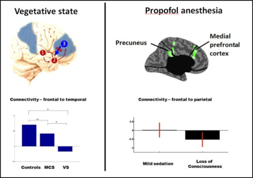 PET studies reveal hypometabolism in similar fronto-parietal areas in vegetative and anesthesia (areas in blue, left panel). Recent dynamic causal modeling studies also suggest a loss of top-down (reentrant) connectivity in fronto-parietal cortices in both vegetative state (left panel, assessed for response to auditory stimuli) and propofol anesthesia (right panel, assessed from spontaneous EEG). Adapted from Boly et al. (2011, 2012a). *Significant difference between conditions (corrected p < 0.05).