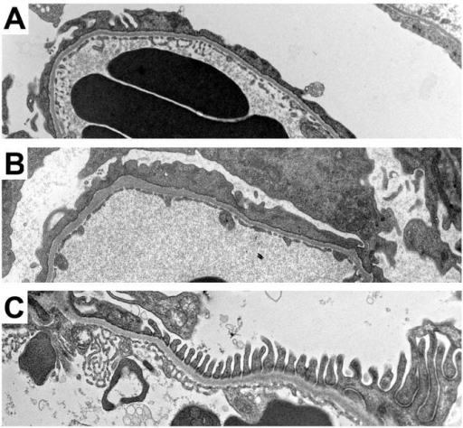 Transmission EM of glomerular capillary walls of UNX/DOCA-salt-treated Rac1-fl/fl (A) and podoRac1−/− (B) mice displaying focal and segmental foot process effacement. Sham-treated podoRac1−/− and Rac1 fl/fl (C) exhibit only normal appearing, regularly interdigitating podocyte foot processes.