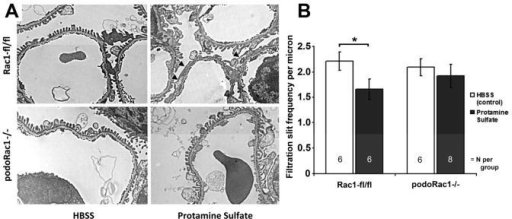 Loss of podocyte-specific Rac1 protects against induction of podocyte foot process effacement by protamine sulfate. (A) Transmission EM of glomerular capillary walls of floxed control mice after perfusion with HBSS control (top left) and protamine sulfate (top right) demonstrates partial foot process effacement (arrowheads). Glomerular capillary walls from podoRac1−/− mice after perfusion with HBSS control (bottom left) and protamine sulfate (bottom right) shows no qualitative difference in foot process morphology. Results are representative of 6-8 mice per group. ×7900 magnification (B) Filtration slit frequency per micron as seen by transmission EM reflects the morphologic interpretation. *P<0.05