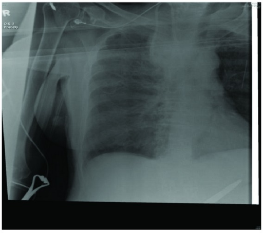Chest X-ray showing right upper lobe whitening.