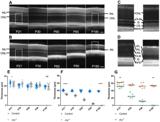 Characterization of a retinal degeneration mouse model by SD-OCT.SD-OCT images of control mice retina (A) and rho−/− mice retina (B) from post-natal day 21 (P21) to 180 (P180). Magnification (X2.4) of P21 and P180 control mice outer retina (C) and rho−/− mice (D). (E) Measures of INL thickness obtained from SD-OCT data in control and rho−/− mice (P21: p = 0.0123; P180: p = 0.7125). (F) Measures of ONL thickness obtained from SD-OCT data in control and rho−/− mice (P21 and P180: p<0.0001). (G) Measures of ONL thickness obtained from morphometric measurements on cryostat sections in control and rho−/− mice (P15 and P180: p = 0.0022). Statistical significance of the difference between groups was analyzed at the initial time-point (P15 or P21) and the latest time-point (P180) studied by Student's T-test for E and F (n = 23 per group) and by Mann Whitney test for G (n = 6 per group). IPL: inner plexiform layer, INL: inner nuclear layer, ONL: outer nuclear layer, OLM: outer limiting membrane, RPE: retinal pigmented epithelium. SD: Standard Deviation. Scale bars: 50 µm.