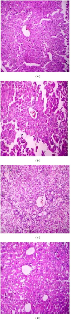 Histopathology of the liver. Sections of hematoxylin and eosin-stained liver (×500 magnification) are shown. (a) Diseased mice treated with phage GNCP. (b) Diseased mice treated with imipenem. (c) Diseased mice infected with lethal dose. (d) Control group of mice received PBS.