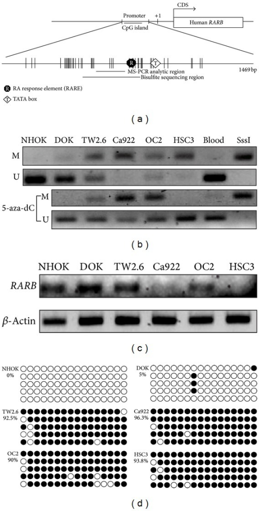 Methylation status in human oral cancer cell lines of RARB. (a) The schematic for CpG island presentation of RARB. There was a CpG island located in promoter region. We designed the MS-PCR and bisulfite sequencing primer sets in this region. (b) The RARB methylation status in different human oral cancer cell lines. The cell lines were also treated with 5′-aza-dC. The methylation status was recovered because of 5′-aza-dC treatment. (c) The RARB mRNA expression in different human oral cancer cell lines. The RARB was not expressed in Ca922, OC2, and HSC3 obviously. (d) The RARB bisulfite sequencing in different human oral cancer cell lines. There were more methylated RARB in TW2.6, Ca922, OC2, and HSC3 than in NHOK and DOK. The hollow circle is the unmethylated CpG site and the full circle is the methylated CpG site.