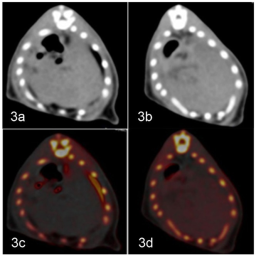Examples showing mild and severe iron deposition; steatosis also coexisted in the liver.a–b) In the general view image, the degree of iron or steatosis in the liver could barely be determined from the gray-scale or CT value. c–d) On the VIC image, the existence and degree of iron are indicated in red colored dots and the iron enhancement value; the existence and degree of steatosis can be measured by the VNC value. For heavier iron deposition, more intense red colored dots and higher iron enhancement values were observed. More severe steatosis resulted in a smaller VNC value.