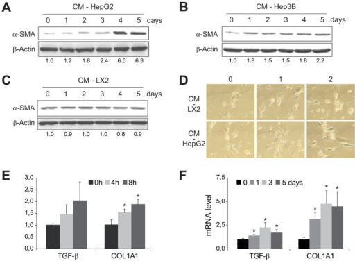 HSCs are activated by conditioned medium (CM) from HepG2 and Hep3B cells.Representative western blot showing α-SMA activation primary murine HSCs (day 7), previously exposed to conditioned medium from HepG2 (A), Hep3B (B) or LX2 cells (C) for 0–5 days, using β-actin levels as a control. D, Microscopic images of morphological changes in HSCs preteated with CM from HepG2 or LX2 during 0, 1 or 2 days. E and F, mRNA quantification of TGF-β and COL1A1 in 7-days-old HSCs after previous CM-HepG2 addition for the indicated periods of time. (n = 3). *, p ≤ 0.05, specific time vs. 0 time point.