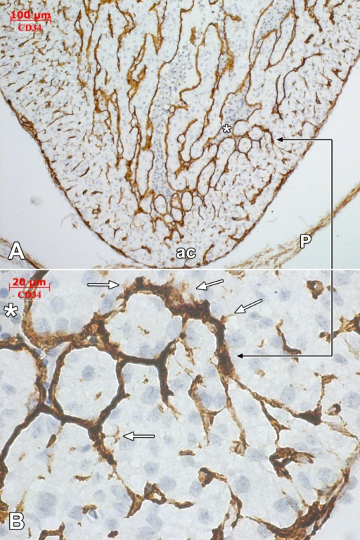 Human embryonic heart (56 days), CD 34 immune labeling.Immune labeling with CD34 antibodies of a 56 days human embryonic heart, oblique-sagittal cut. General view (A) with detailed area in (B), indicated by the black connector. The CD34 positive endocardial cells cover the ventricular cavity (*). Endocardial tip cells (white arrows) are identified projecting filopodia within the myocardium. The endocardially-derived endothelial networks advance towards the epicardially-derived endothelial networks. ac: apex cordis; P:pericardium.