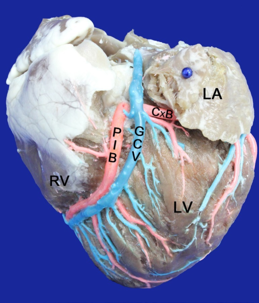Left surface of the heart. LA=Left Atrium; LV=Left Ventricle; RV=RightVentricle; GCV=Great cardiac vein draining directly into the right atrium;PIB=Paraconal interventricular branch; CxB=Circumflex branch