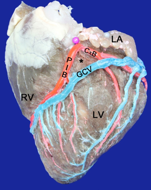 Left surface of the heart. LA=Left Atrium; LV=Left Ventricle; RV=RightVentricle; GCV=Great cardiac vein; PIB=Paraconal interventricular branch;CxB=Circumflex branch; (*)=Arteriovenous triangle, open at the lower end andclosed at the top