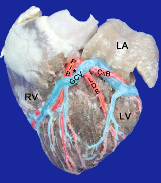 Left surface of the heart. LA=Left Atrium; LV=Left Ventricle; RV=RightVentricle; GCV=Great cardiac vein. PIB: Paraconal interventricular branch;CxB=Circumflex branch, LDB=Left diagonal branch; (*)=Arteriovenous triangle,closed at the lower end and top