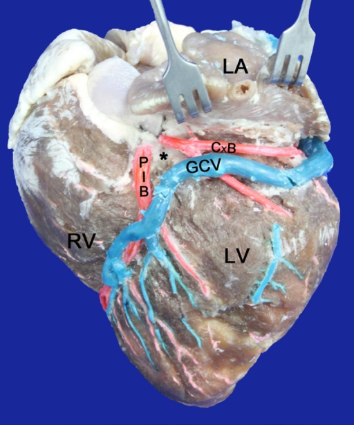Left surface of the heart. LA=Left Atrium; LV=Left Ventricle, RV=RightVentricle; GCV=Great cardiac vein; PIB=Paraconal interventricular branch;CxB= Circumflex branch; (*)=Arteriovenous triangle, closed at the lower endand open at the top