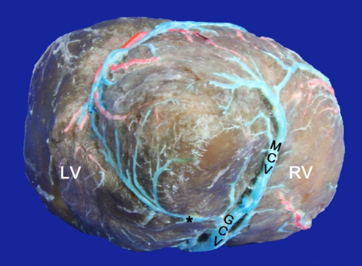 Venous communication between middle and great cardiac veins. LV=LeftVentricle; RV=Right Ventricle; MCV=Middle cardiac vein; GCV=Great cardiacvein; (*)=Venous communication near the apex of the heart