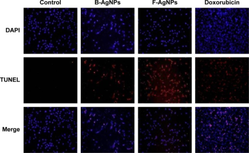B-AgNPs and F-AgNPs promote apoptosis.Notes: MDA-MB-231 cells were treated with respective IC50 concentrations of B-AgNPs or F-AgNPs for 24 hours. Fluorescent staining of cells was recorded. Representative images are shown for apoptotic DNA fragmentation (red staining) and corresponding nuclei (blue staining).Abbreviations: B-AgNPs, bacterium-derived AgNPs; DAPI, 4′,6-diamidino-2-phenylindole; F-AgNPs, fungus-derived AgNPs; IC50, half-maximal inhibitory concentration; TUNEL, terminal deoxynucleotidyl transferase dUTP nick end labeling.