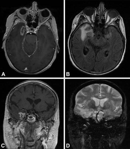 Radiation Necrosis Magnetic resonance images at presentation of a 73-year-old female with a history of trigeminal neuralgia, which was treated previously by TomoTherapy radiosurgery, shows significant mass effect in close proximity to Meckel's cave. (A) Axial T1-weighted image with contrast; (B) axial FLAIR; (C) coronal T1-weighted image with contrast; and (D) coronal T2-weighted image. Used with permission from Barrow Neurological Institute.