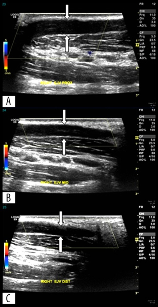 Ultrasound Doppler of the right external jugular vein showing filling defect suggestive of thrombosis. Right proximal external jugular vein (A). Right middle external jugular vein (B). Right distal external jugular vein (C).