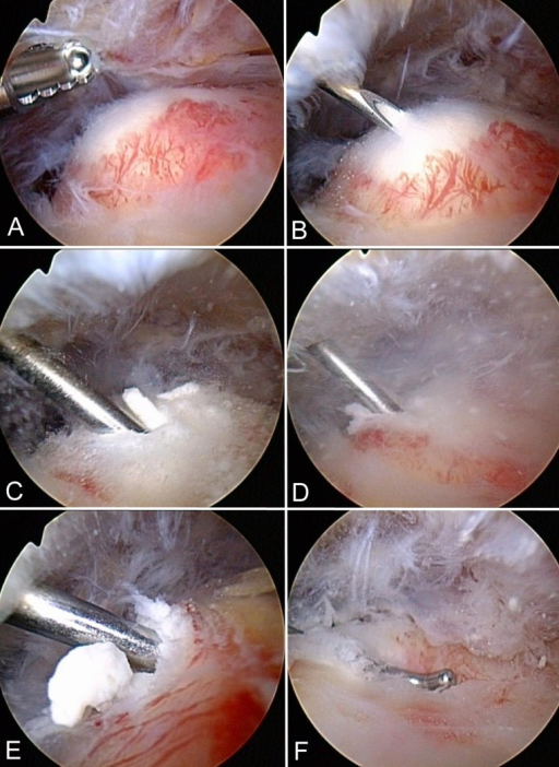 "Operative technique. (A) Partial subacromial bursectomy is performed in the suspected region of calcific deposit (CD) localization (left shoulder). The CD appears as a bump as a result of swelling of the affected supraspinatus tendon. (B) A needle is used to locate the center of the deposit. (C) A blunt hook probe is inserted into the center of the deposit without incising the tendon. (D) ""Squeezing"" and (E) ""stirring"" with the hook probe effectuates blunt elimination of carbonate apatite. (F) After CD removal, an indentation is noted at the site of the former bump."