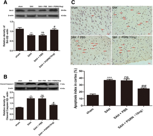 Effect of PGRN on neural cell apoptosis 24 h after SAH. Western blotting revealed Bcl-2 levels in the SAH group were significantly reduced compared with sham. R-PGRN treatment increased the levels of Bcl-2 (a). Cleaved caspase-3 levels in the SAH group were significantly higher than the sham group. Treatment with r-PGRN markedly reduced cleaved caspase-3 levels (b). The number of TUNEL-positive cells increased after SAH and reduced after r-PGRN treatment (c). No difference was detected between the untreated SAH group and the PBS-treated SAH group. Data are expressed as the mean ± SEM from six rats. ***p < 0.001 and **p < 0.01 compared with the sham group, nsp > 0.05 compared with the SAH group, ##p < 0.01 and #p < 0.05 compared with the SAH group