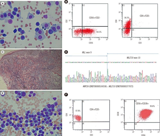 Morphological features, flow cytometric analysis, immunohistochemical stain, and genetic study of the two cases of CD4+/CD56+AML. (A) Plasmoblast-like neoplastic cells in the first case (Wright Giemsa stain, 400×, Bone marrow); (B) Immunophenotyping features with CD56 and CD4 coexpression in the first case; (C) Skin biopsy showing diffuse infiltration of medium- to large-sized agranular blastic cells into the dermis in the first case (Hematoxylin and Eosin stain, 100×, Skin lesion); (D) The MLL-MLLT10 rearrangement confirmed by direct sequencing in the first case; (E) Plasmacytoid cells in the second case (Wright Giemsa stain; ×400, Bone marrow); and (F) The immunophenotyping features with CD4 and CD56 coexpression in the second case.