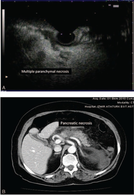 (A) Multiple pancreatic parenchymal necrosis (<20 mm) on EUS are seen (arrowhead). (B) CT view of the pancreatic necrosis (<20 mm) in the same patient. CT = computerized tomography, EUS = endosonography.