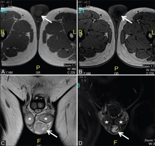 (A) In-phase and (B) Out-of-phase images from chemical shift MRI shows signal drop within the mass (arrow). (C) Coronal T2-weighted MRI shows heterogeneous hyperintense mass (arrow) in the left hemiscrotum separate from the testis (asterisk). (D) Postcontrast T1-weighted MRI shows heterogeneously enhancing mass (arrow) in the left hemiscrotum separate from the testis (asterisk)