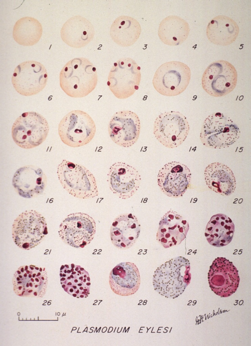 <p>Microscopic views illustrating the stages of growth of a malarial parasite.  (1) A normal red cell; (2-20) trophozoites; (21-27) schizonts; (28) young macrogametocyte; (29) mature macrogametocyte; (30) microgametocyte.</p>