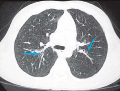 Inspiratory chest CT demonstrating mild peribronchial thickening (left ...