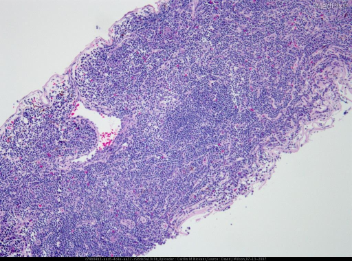 Histology of a patient with low grade B-cell lymphoma MALT type with plasmacytic differentiation.