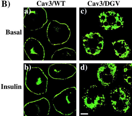 Expression of a dominant-interfering caveolin 3 mutant inhibits insulin-stimulated GLUT4 translocation. (A) Differentiated 3T3L1 adipocytes were coelectroporated with 50 μg of GLUT4-EGFP plus 200 μg of the empty vector (a and b), Myc epitope–tagged wild-type caveolin 3 (Cav3/WT; c and d), or Myc epitope tagged dominant-interfering caveolin 3 mutant (Cav3/DGV; e and f). 36 h later, the cells were then incubated for 30 min in the absence (a, c, and e) or presence (b, d, and f) of 100 nM insulin. The cells were then fixed and the subcellular localization of GLUT4-EGFP was determined by confocal fluorescent microscopy. These are a representative field of cells from four independent determinations. (B) The subcellular distribution of expressed Cav3/WT (a and b) or the Cav3/DGV mutant (c and d) was determined by confocal fluorescent microscopy. These are a representative field of cells from four independent determinations. Bar, 10 μM.