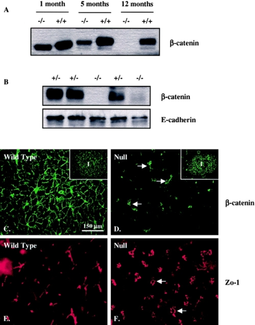 Progressive loss of β-catenin is associated with increased acinar cell disorganization in Mist1KO mice. (A) Western blot analysis of protein samples from wild-type (+/+) and Mist1KO (−/−) mice reveals a gradual loss of β-catenin expression in Mist1KO acinar tissue. (B) The loss of β-catenin expression is observed in all Mist1KO mice at 12 m of age, whereas Mist1LacZ mice (+/−) exhibit normal levels of β-catenin. E-cadherin expression remains relatively normal in Mist1KOmice. (C–F) Loss of β-catenin is specific to the acinar tissue in Mist1KO mice. The exocrine tissue of Mist1- mice exhibits a complete absence of β-catenin protein (compare C with D), whereas the islets (I, insets) and duct cells (arrows) continue to express normal β-catenin levels. Similar analysis with a ZO-1–specific antibody (E and F) reveals that tight junctions are maintained in Mist1KO mice, albeit surrounding severely distended lumens (arrows).