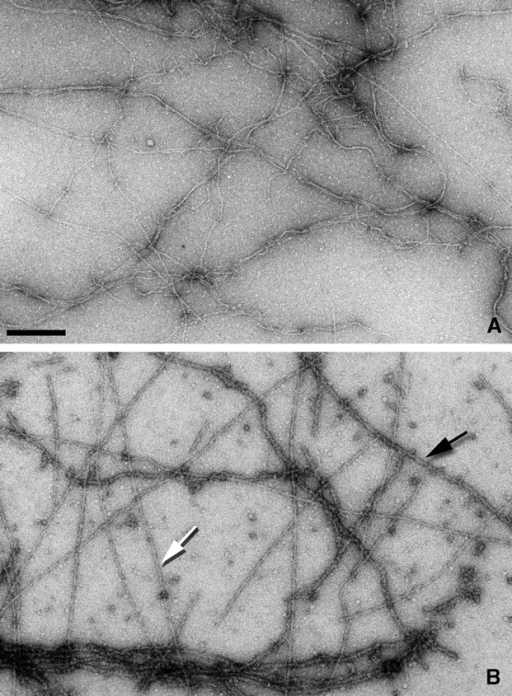 Electron micrographs of negatively stained β-actin filaments alone (A) and decorated with the utrophin ABD (B). Two different forms of decoration can be seen (B). Lightly stained, rigid filaments (white arrow) and darkly stained, flexible filaments (black arrow). The darkly stained filaments tend to aggregate extensively, whereas such aggregation is not seen with the lightly stained filaments. Bar, 2,000 Å.
