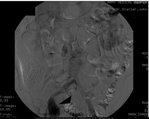 Persistent opacification of the pseudoaneurysm sac.