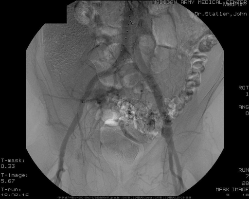 Nonvisualization of the pseudoaneurysm sac signifies exclusion.