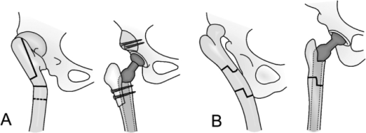 Osteotomies used for various deformities of the femur. The femoral shaft is usually transected distal to the lesser trochanter, as shown by the transverse solid line in (A). A dotted line demonstrates the most distal possible level of the osteotomy. A. Proximal shortening osteotomy with distal advancement of the greater trochanter (vertical solid line) in hips with a previous proximal Schanz osteotomy. B. Segmental shortening with angular correction for hips with a previous, more distal Schanz osteotomy. Copyright for the illustrations in this figure is owned by The Journal of Bone and Joint Surgery, Inc. (published in Eskelinen et al. Cementless total hip arthroplasty in patients with high congenital hip dislocation, J Bone Joint Surg Am. 2006; 88: 80-91). Reproduced with permission.