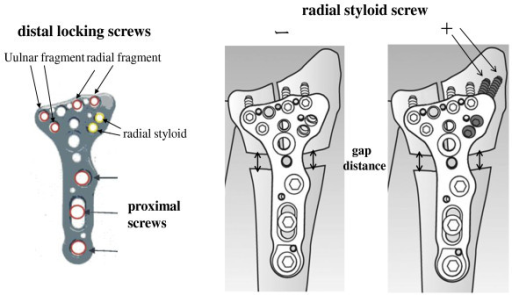 results of volar locking plate osteosynthesis for distal radial fractures