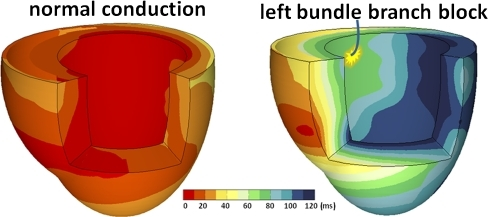 Typical examples of 3D electrical activation in canine hearts during normal conduction (left panel) and after creation of LBBB (right panel). Plotted activation times were derived from ≈110 epicardial and endocardial contact electrodes and referenced to the onset of the Q wave. In the right panel, the ablation catheter is shown with the approximate location of ablation after which a LBBB pattern occurred