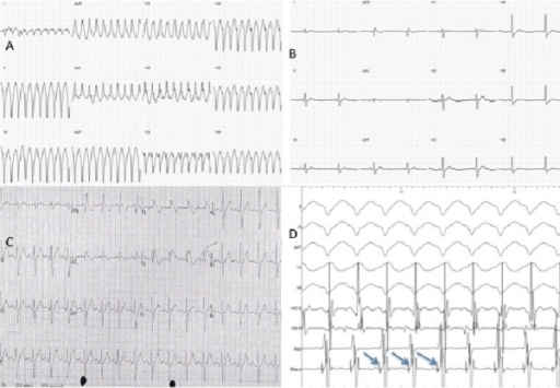 (A) Classical left posterior fascicular VT with right bundle branch block pattern and superior axis. (B) Resting ECG with no ST elevation. (C)Type 1 Brugada ECG pattern with coved ST elevation and J point elevation in leads V1 and V2 following administration of intravenous flecainide. (D) Recordings taken at time of EPS during VT. Sweep speed of 100mmm/sec. Displayed (from top) are 4 leads from ECG, 2 intracardiacelectrograms from quadripolar catheter at the His position and 2 recordings from mapping catheter (Map) in the region of the posterior fascicle. A high frequency short duration Purkinje potential (arrows) is seen preceding the onset of the QRS.
