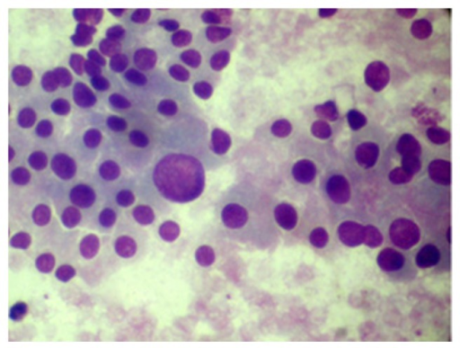 Hurthle cell change with sudden anisocytosis (MGG 400X).