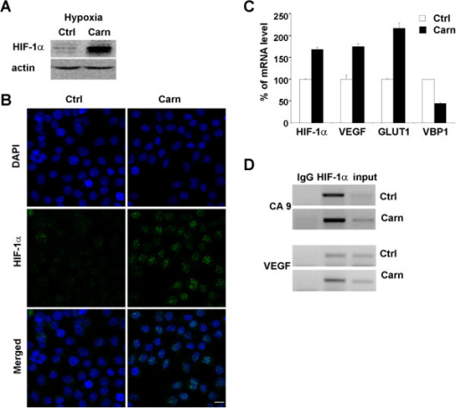 Effect of carnosine on the level of HIF-1α. HIF-1α protein level was increased in hypoxic HeLa cells cultured in the presence of 20 mM carnosine for 48 h as demonstrated by western blot (A) and immunofluorescence (scale bar, 10 μm) (B). (C) Carnosine treatment increased expression of HIF-1α mRNA and its target genes VEGF and GLUT-1 under hypoxic conditions. Concurrently, the mRNA level of VBP1, a protein that binds to VHL and is involved in HIF-1α degradation, was decreased. (D) Chromatin immunoprecipitation assay performed under the same conditions demonstrated that HIF-1α bound to hypoxia-responsive elements in the promoter region of VEGF and CA9 genes.