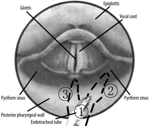 Diagram Of Pyriform Sinus Localization