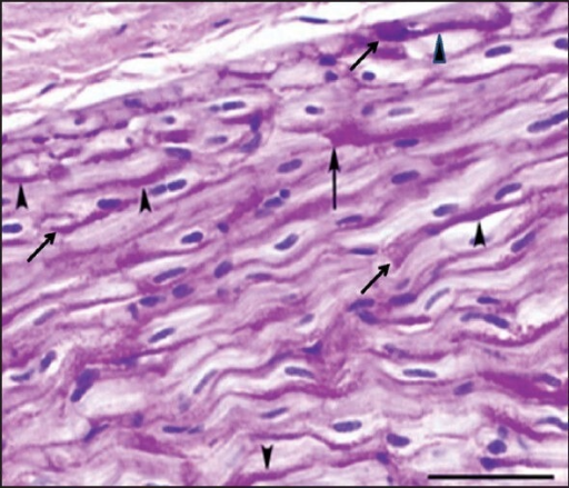 Heart, goat. In contrast to the RAAs, in the LAAs glycogen often concentrated against intercalated discs (arrows) with dense tails of glycogen extending into the cell along the lateral wall at the myocyte-myocyte junction (solid arrowhead). Periodic-acid Schiff (PAS) stain without diastase treatment. Diastase treatment cleared magenta PAS staining (not shown). Bar = 50 μm