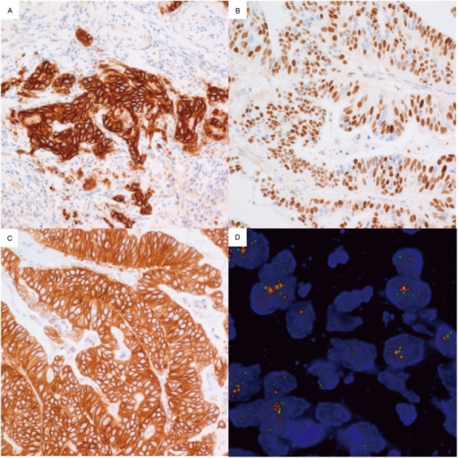 Immunohistochemical staining for EGFR, CCNE1 and HER2, and FISH for HER2.Cases with copy number increases showed strong positive for EGFR (A), CCNE1 (B) and HER2 (C). A case with HER2 2+ by immunohistochemistry reveals amplification of HER2 genes in FISH (D).